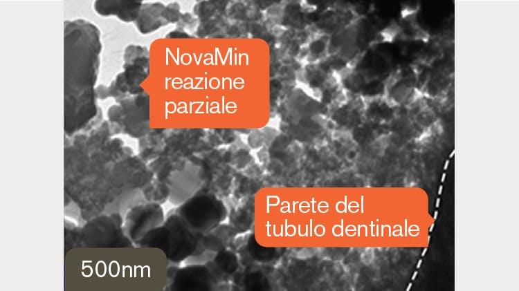 Immagine TEM della dentina a 500 nm