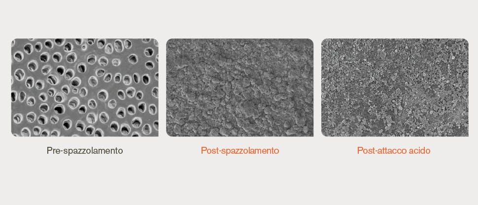 Immagini della superficie dentinale ottenute con il microscopio elettronico a scansione (SEM)