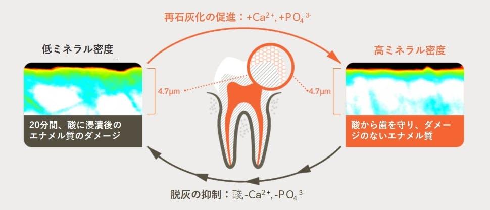 酸に20分間浸漬後の脱灰と再石灰化のサイクル