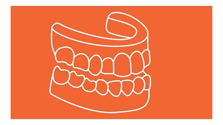 義歯設計の基礎