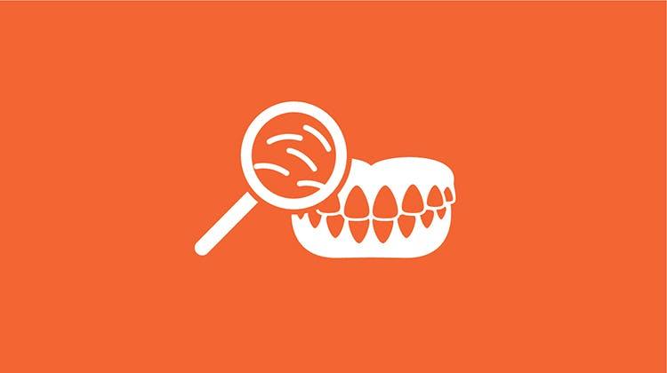 食物片の侵入