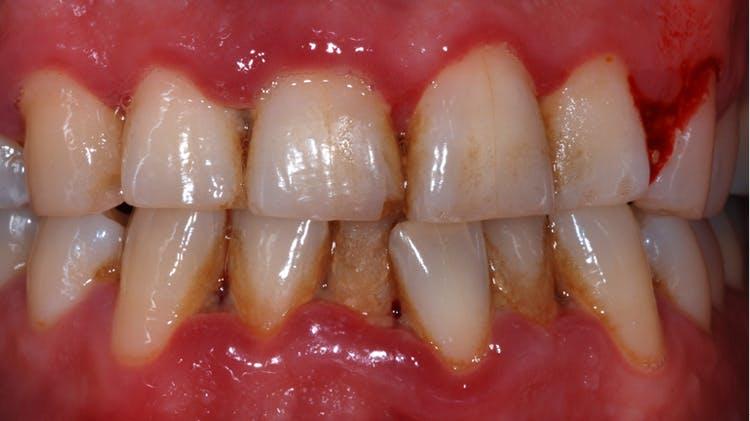 괴사성 궤양성 치은염 및 괴사성 궤양성 치주염