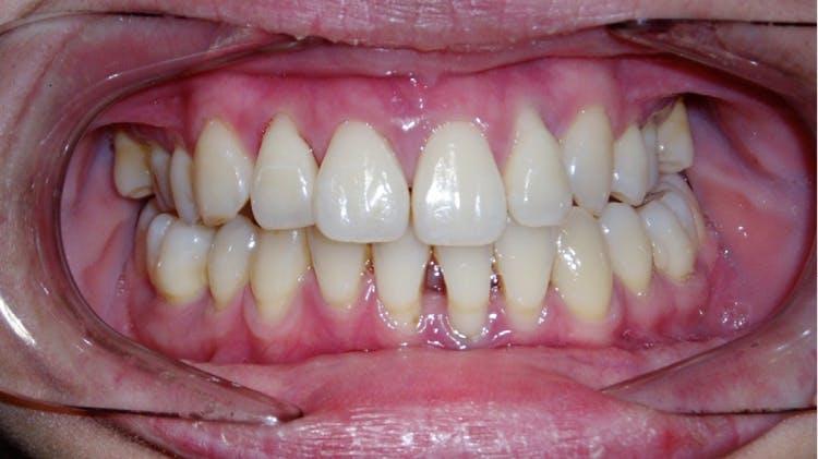 침습성 치주염