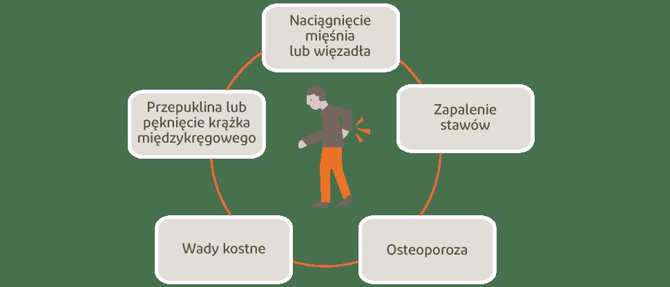 Grafika przedstawiająca potencjalne przyczyny bólu pleców