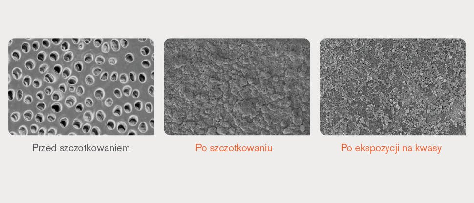 Obrazy powierzchni zębiny ze skaningowego mikroskopu elektronowego (SEM)