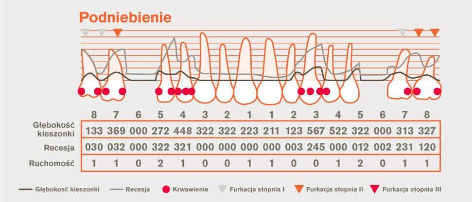 Szczegółowy schemat periodontologiczny