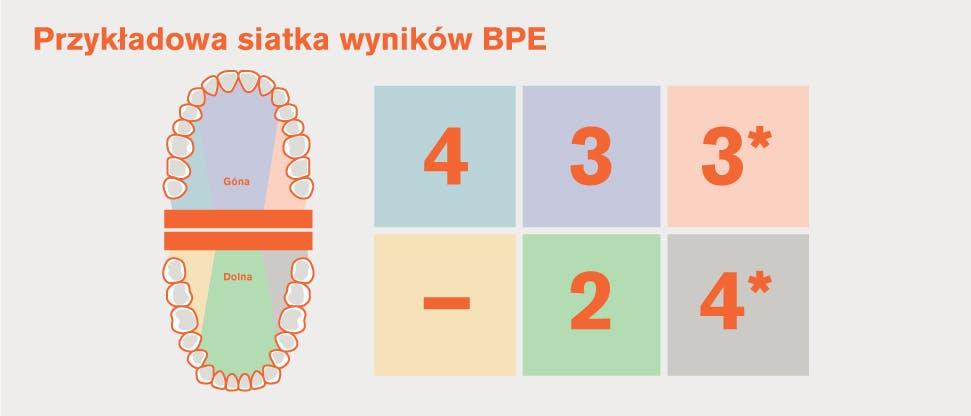 Podział uzębienia na sekstanty wg BPE i przykładowa siatka