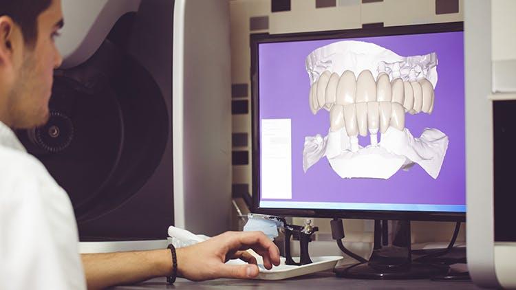 Impacto da anatomia oral