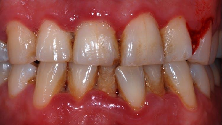 Gengivite ulcerativa necrosante e periodontite ulcerativa necrosante