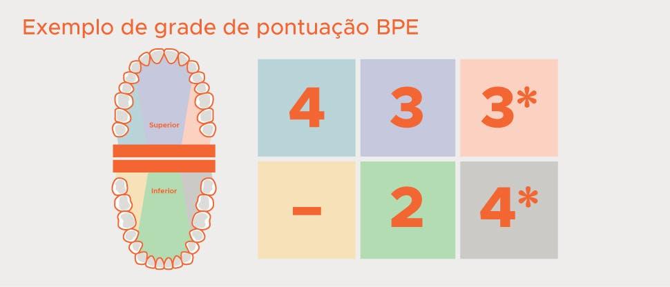 Divisão BPE da dentição em sextantes e exemplo de grade