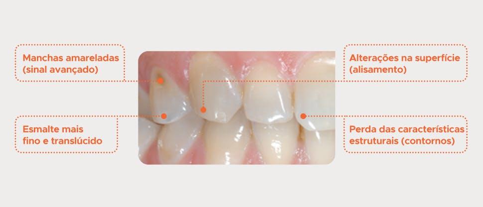 Dentes com desgaste do esmalte