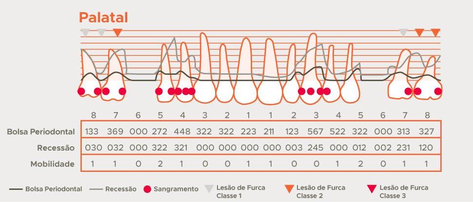 Gráfico de detalhamento periodontal