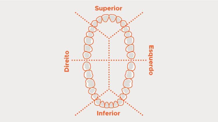 Dentição dividida em sextantes