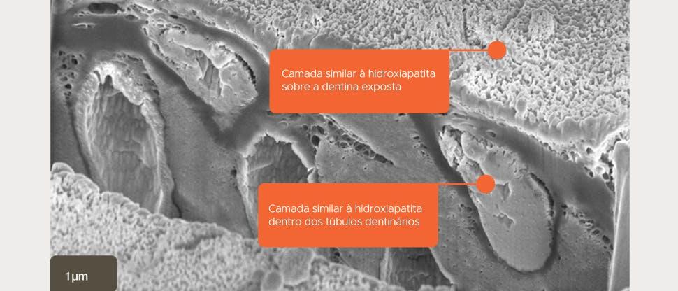 Imagem SEM da camada similar à hidroxiapatita