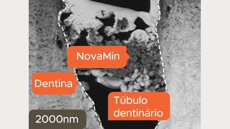 Imagem TEM da dentina a 2000nm