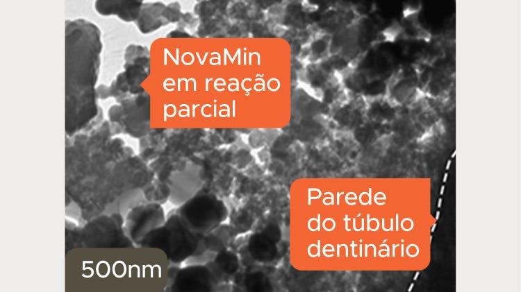 Imagem TEM da dentina a 500nm