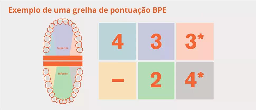 Divisão da dentição BPE em sextante e exemplo grelha