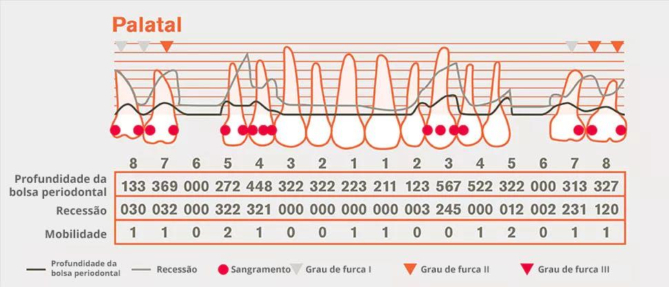 Gráfico de detalhe periodontal
