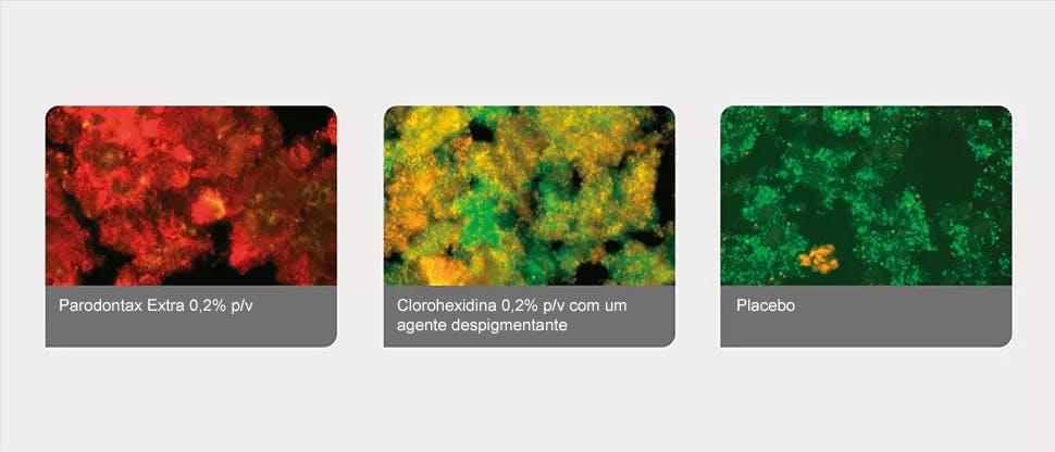 Biofilmes de placa bacteriana tratados por análise de imagem