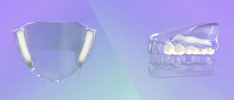 Modul de acţiune al cremei adezive pentru proteze dentare