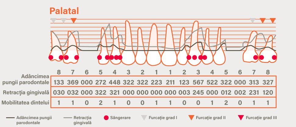 Grafic detaliat parodontal