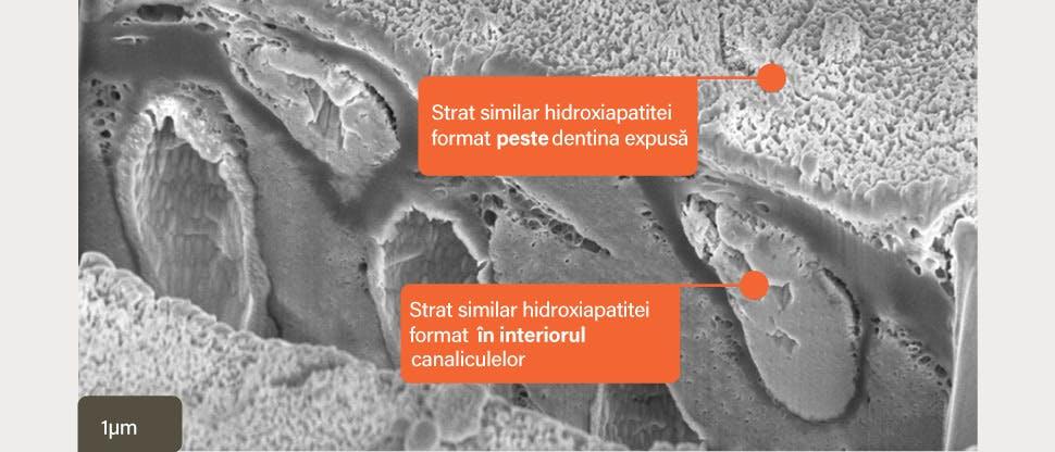 Secţiune in vitro cu SEM