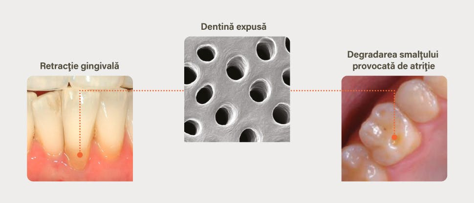 Cauzele expunerii dentinei