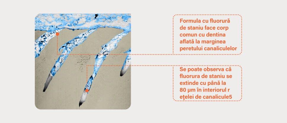 Imagine FIB-SEM reprezentativă a canaliculelor din dentină