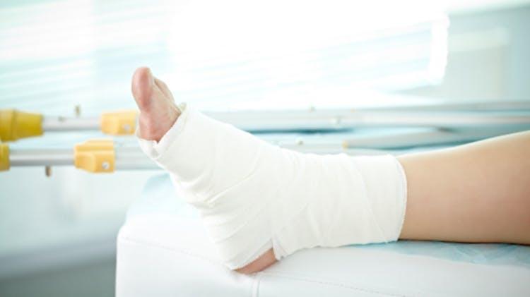 Picior cu bandaj de compresie
