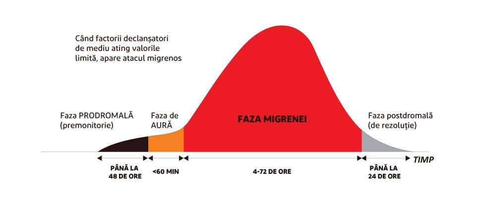 Cele patru faze ale migrenei
