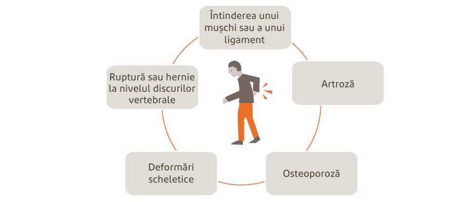 Grafic care ilustrează posibile cauze ale durerii de spate