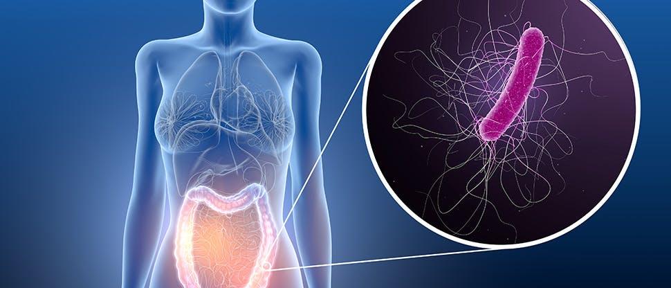 3d-illustration-showing-colitis-clostridium-difficile-bacteria-in-large-intestine
