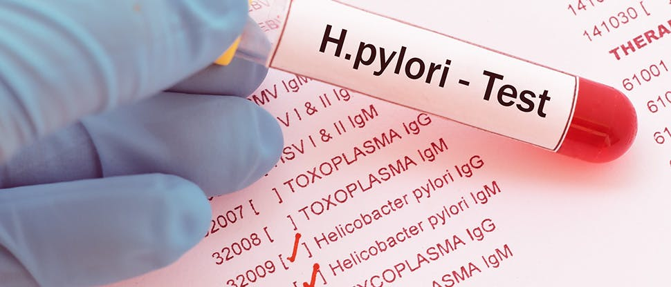 blood-sample-with-requisition-form-for-helicobacter-pylori-test