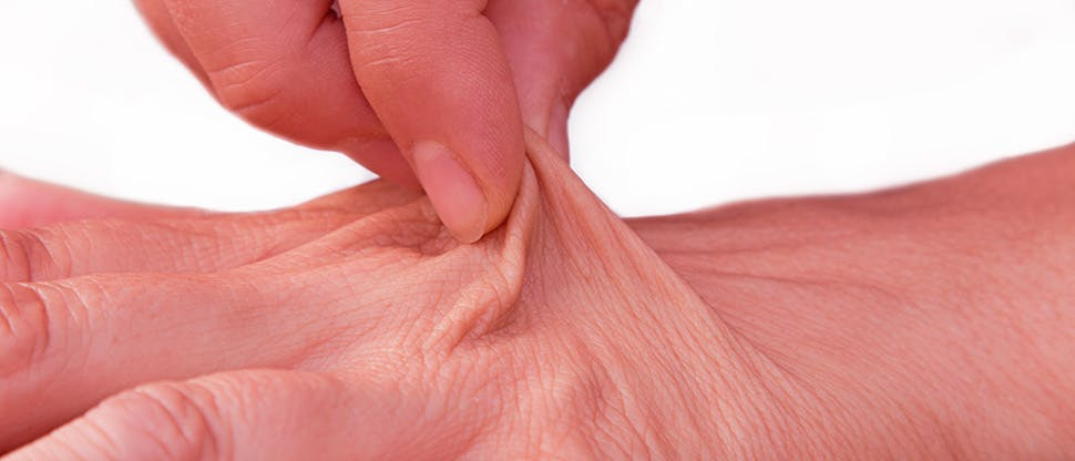 female-hand-of-an-elderly-woman-with-loose-tissue-dehydrated-skin
