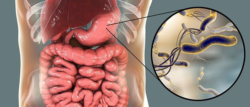 helicobacter-pylori-bacterium-colonizing-stomach