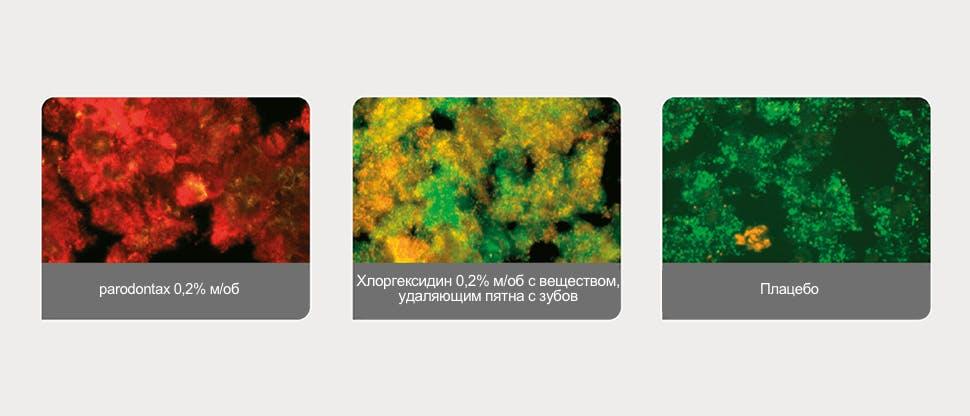 Биопленка зубного налета, обнаруженная с помощью программы анализа изображений
