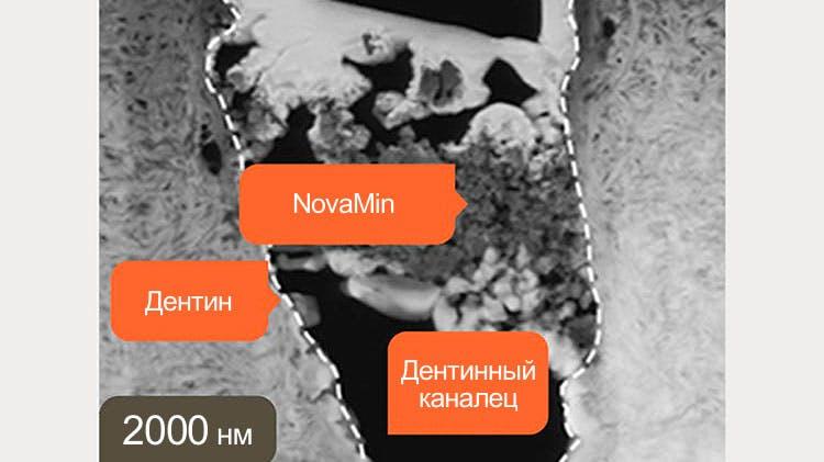 Изображение дентина, полученное методом ПЭМ при длине волны 2000 нм