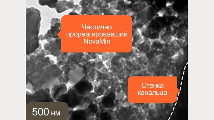 Изображение дентина, полученное с помощью ПЭМ при длине волны 500 нм