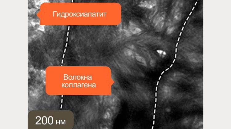 Изображение дентина, полученное с помощью ПЭМ при длине волны 200 нм