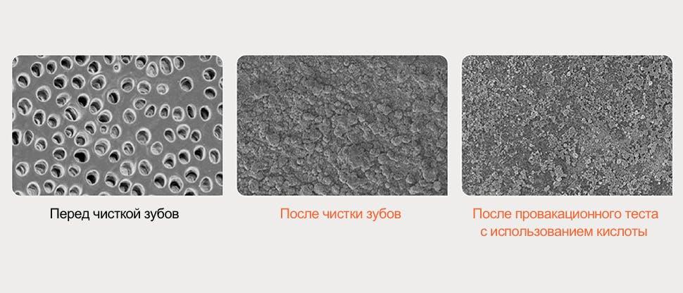 Изображения поверхности дентина, полученные с помощью сканирующего электронного микроскопа (СЭМ)