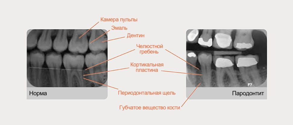Рентгенограмма с расшифровкой