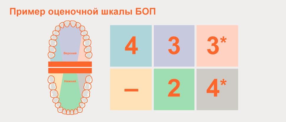 Разделение зубного ряда на секстанты при проведении БОП и пример оценочной шкалы