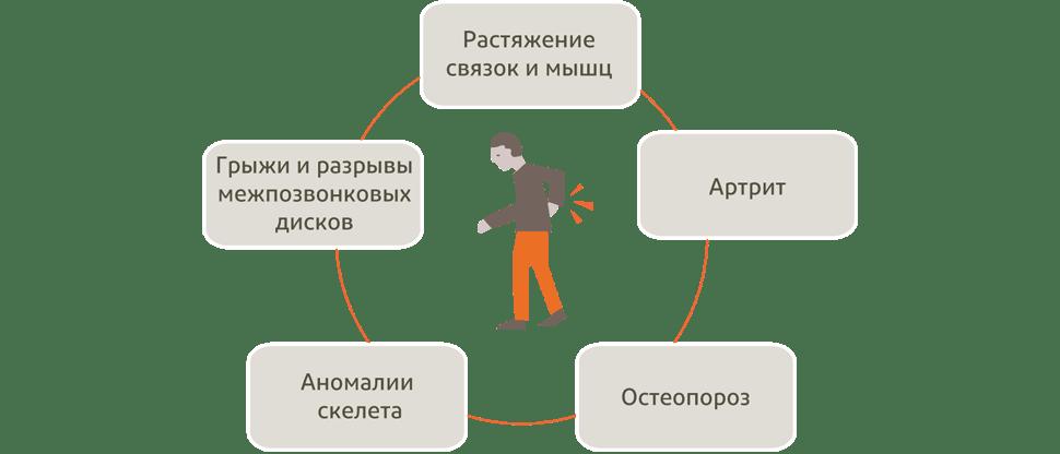 График отображающий возможные причины боли в спине