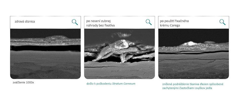 Sliznica ústnej dutiny po 12 hodinách od podráždenia makom a akrylátovými diskami v laboratórnych testoch