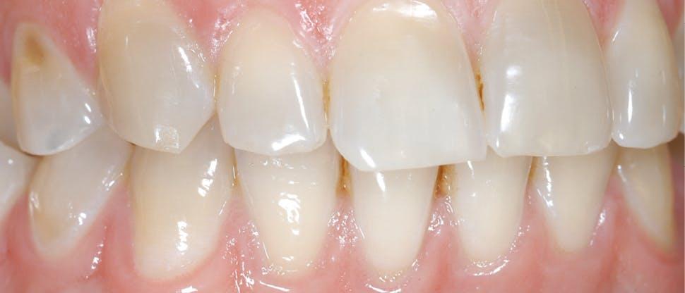 Snímok opotrebovania zubnej skloviny