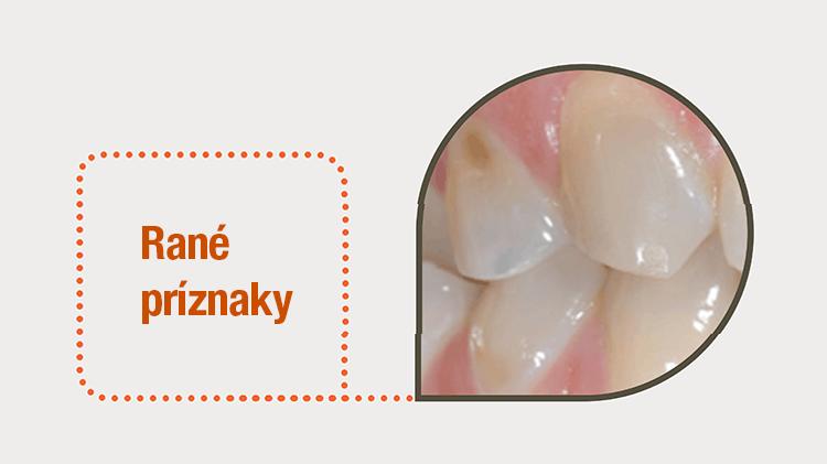 Skoré príznaky opotrebovania zubnej skloviny