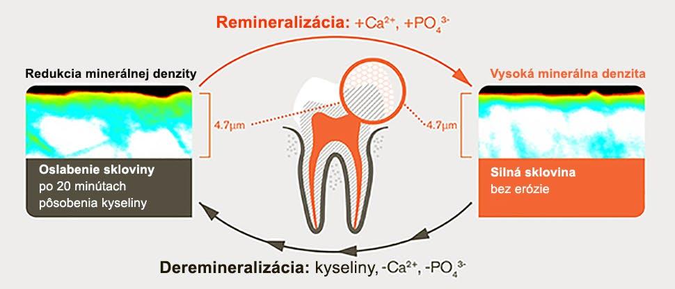 Proces demineralizácie a remineralizácie po 20 minútach pôsobenia kyselín