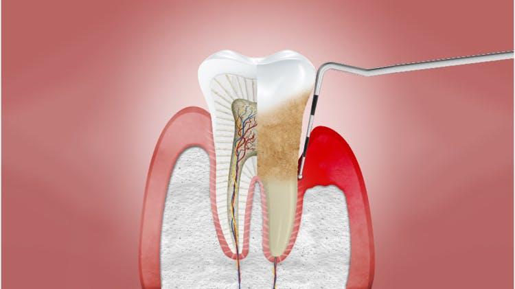 Prierez ďasien s chronickou parodontitídou