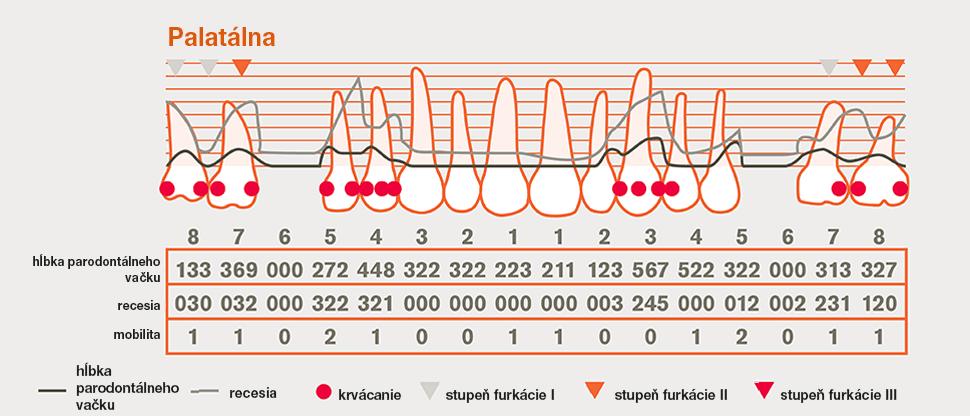 Podrobný parodontálny graf