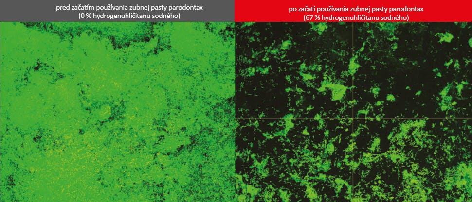 Snímky z biofilmu z konfokálnej laserovej skenovacej mikroskopie (CLSM)